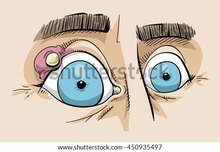 Cartoon of a close up of a stye on the eyelid of a person's eye.