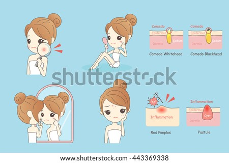 cartoon skin care woman with acne and magnifying glass check it, beauty - stock vector