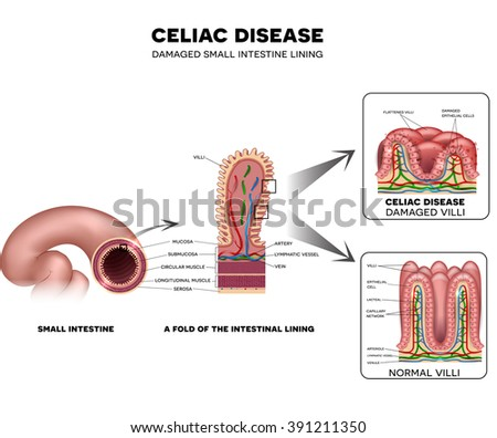 Celiac disease Small intestine lining damage. Healthy and damaged villi. - stock vector