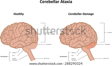 ataxia stock images, royalty-free images & vectors | shutterstock, Skeleton