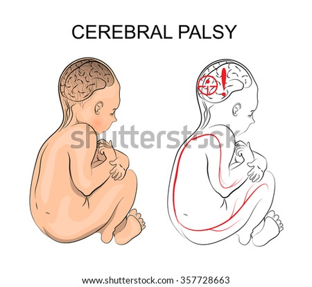 Cerebral Palsy Stock Images Royalty Free Images Amp Vectors