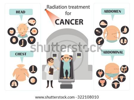 cervical cancer symptoms infographic.Vector illustration - stock vector