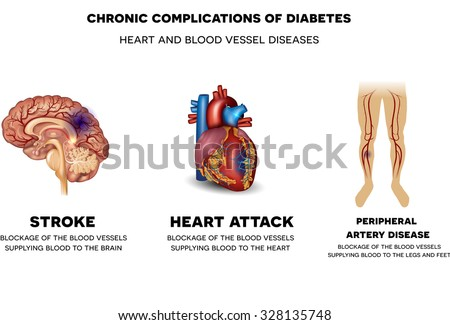 Chronic complications of Diabetes. Heart and blood vessel problems, Stroke, Heart attack and peripheral artery disease. - stock vector