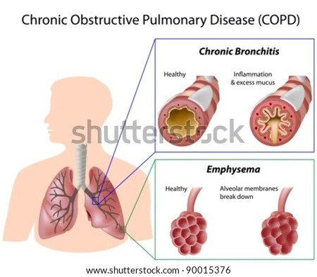 Chronic obstructive pulmonary disease (COPD) - stock vector