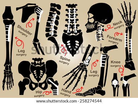 Collection of Orthopedic surgery ( Internal fixation by plate and screw )( skull , head , neck , spine , sacrum , arm , forearm , hand , elbow ,shoulder , pelvic , thigh , hip , knee , leg , foot ) - stock vector