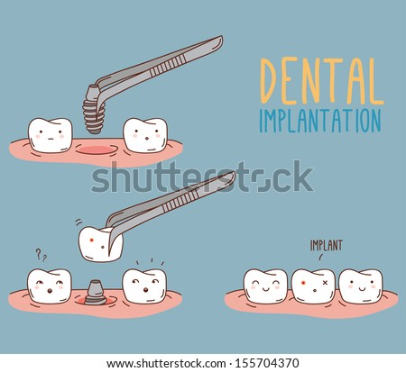 Comics about tooth replacement. Vector illustration for children dentistry and orthodontics. Cute vector characters. Dental implantation. Care and treatment. - stock vector