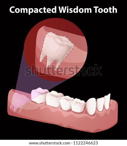 Compacted Wisdom Tooth Diagram Illustration Stock Vector 1122246623