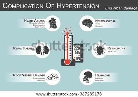 Complication of Hypertension(Heart attack : myocardial infarction , cardiomyopathy )(Brain : stroke , dementia )( visual loss )(Headache)(Renal failure)( Artherosclerosis , aneurysm ) end organ damage - stock vector