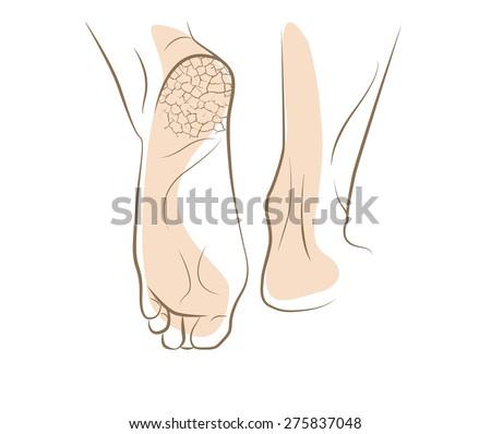 Khái niệm về nấm chân với gót chân nứt, ký họa vector