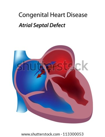 congenital heart disease thesis I have a strong interest in caring for children and adults with congenital heart disease i am currently doing my thesis paper on  has a congenital heart disease.