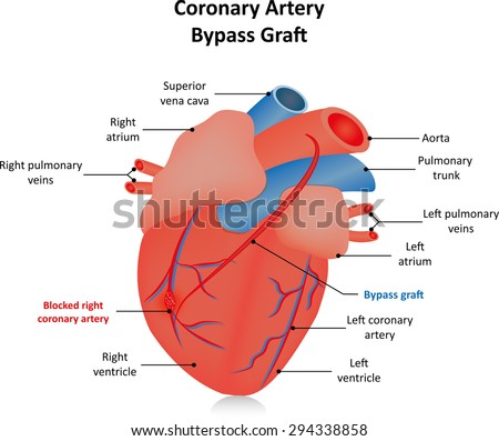Coronary Artery Bypass Graft Labeled Diagram