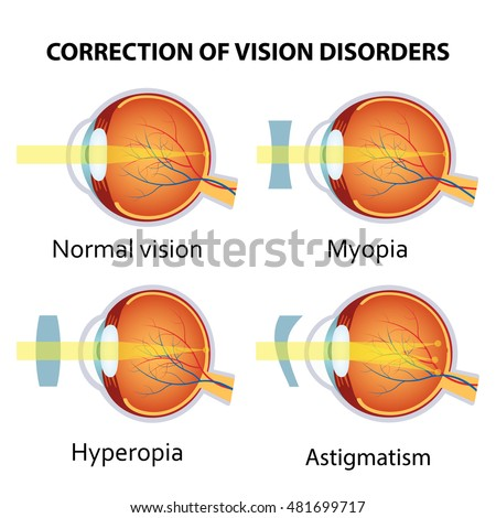 Correction of various eye vision disorders by lens. Hyperopia, myopia and astigmatism.