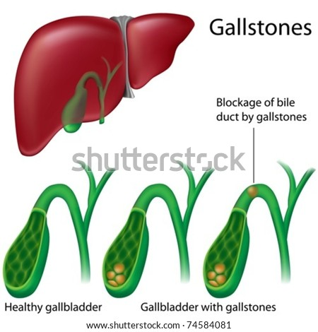 Gallbladder Cross Section Diagram - Trusted Wiring Diagram •
