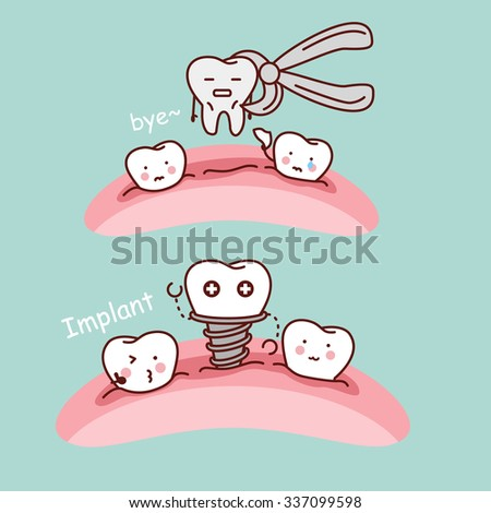 cute cartoon tooth extract and implant, great for health dental care concept - stock vector