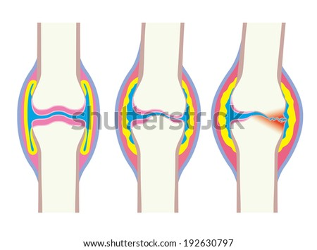 Deformation process of joint