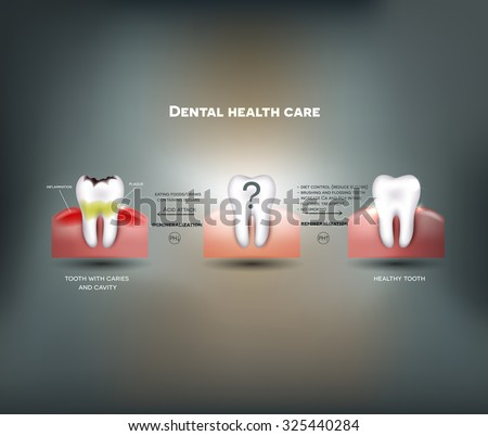 Dental health care tips. Diet without sugars, brushing, fluoride treatment etc. And tooth with caries failure to comply with hygiene  - stock vector