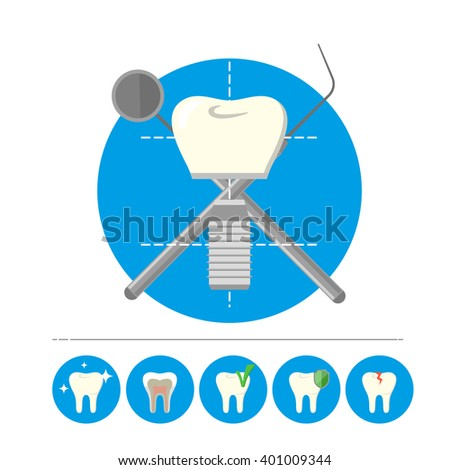 Dental implant. Human tooth implant isolated on white background. Dental implant vector icon. Tooth implant icon. Tooth set. Implant isolated. Dental care. Dentist equipment. White tooth. - stock vector