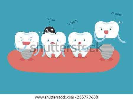 dental implant vector - stock vector