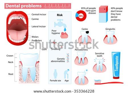 Dental problems and  dental disease. Medical infographic. Set elements and symbols for design. - stock vector