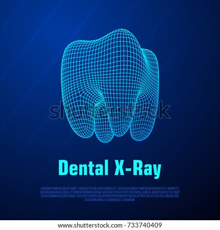 Dental X Ray Tooth Wireframe Mesh Connection Vector de ...