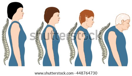Development of a stooped stance with age, showing increasing curvature of the spine