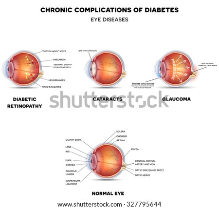 Diabetic Eye Diseases. Retinopathy, cataract and glaucoma detailed structure.
