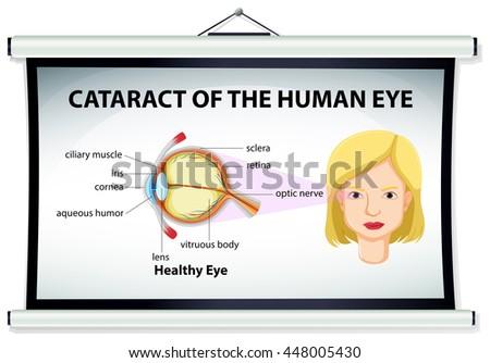 Human Eye Diagram Stock Images, Royalty-Free Images & Vectors ...