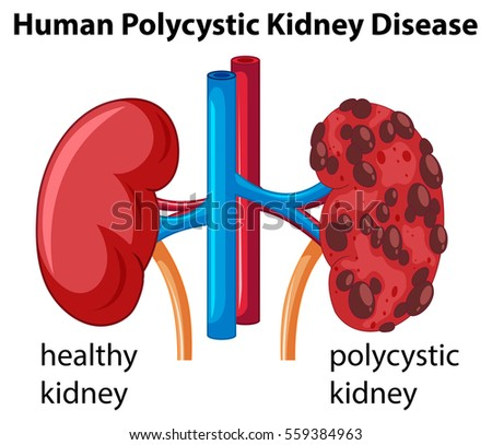 Diagram showing human polycystic kidney disease em vetor stock diagram showing human polycystic kidney disease illustration ccuart Images
