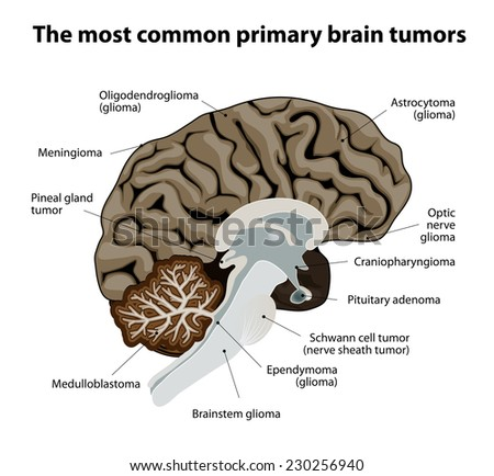 different types of brain tumors. They categorized by the type of cell where the tumor begins. The most common primary brain cancer. Medical Illustration. human Anatomy - stock vector