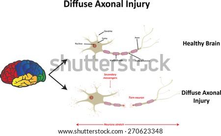 Diffuse Axonal Injury  - stock vector