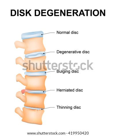 Disc degeneration it's the normal wear and tear process of aging spine. intervertebral discs lose their flexibility, elasticity, and shock-absorbing characteristics. - stock vector