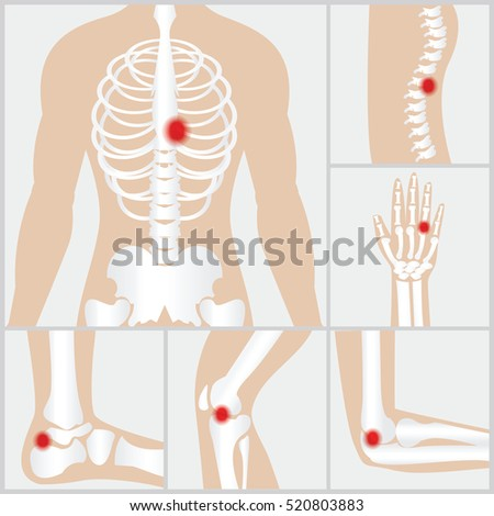 Disease Joints Boneshuman Joints Knee Joint Stock Vector (Royalty ...