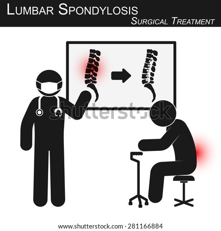 Doctor explain about surgical treatment of lumbar spondylosis and show spine imaging ( before and after operation by internal fixation with plate & screw ) ( stickman vector ) ( Spine care concept ) - stock vector