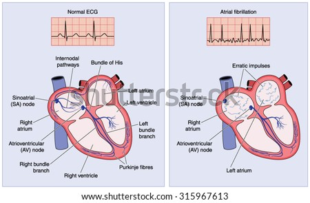 Drawing heart electrical conduction system showing stock vector drawing of the heart electrical conduction system showing normal activity and erratic impulses in atrial fibrillation ccuart Image collections
