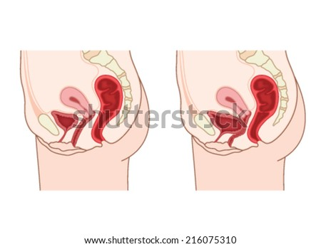 Drawing to show normal female abdominal anatomy and a prolapsed bladder, resulting in a cystocele. Created in Adobe Illustrator.  Contains transparencies.  EPS 10. - stock vector