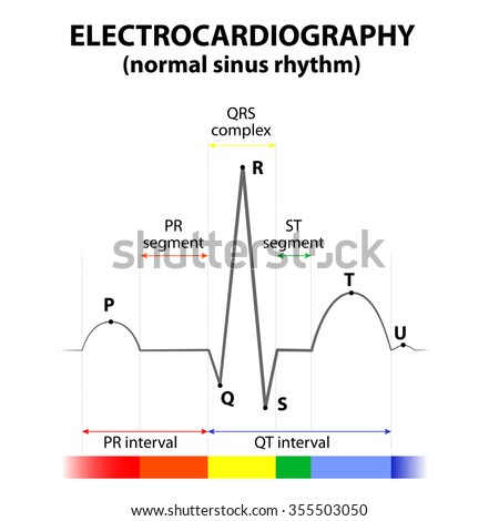 ECG of a heart in normal sinus rhythm. Schematic representation. wave and segment names - stock vector
