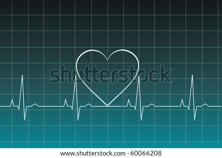Ekg heart beat - stock vector