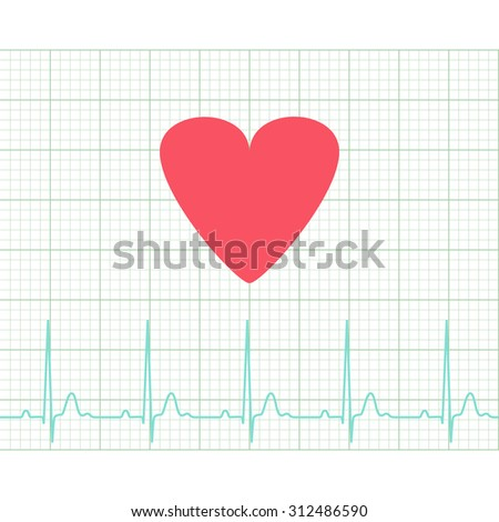EKG - Medical electrocardiogram on grid paper, graph of heart rhythm, chart strip, 2d illustration, vector, eps 8 - stock vector
