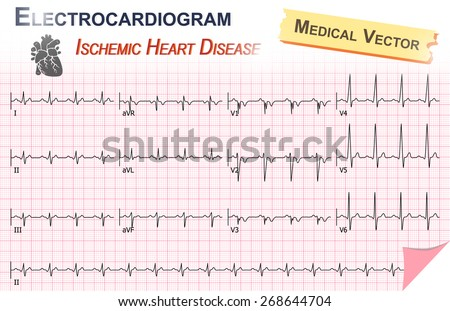 Electrocardiogram ( ECG , EKG ) of Ischemic Heart Disease ( Myocardial Infartion ) - stock vector