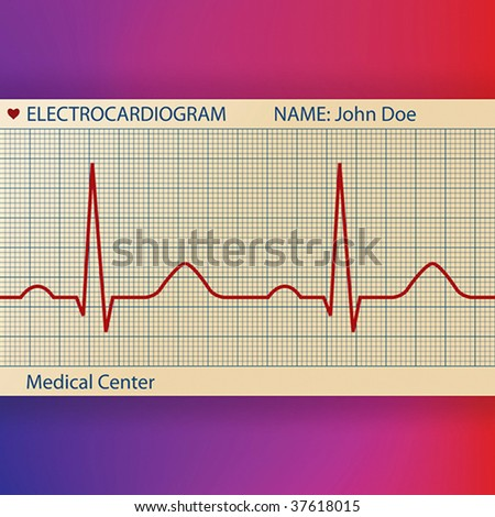 Electrocardiogram paper with normal ECG graphic line - stock vector