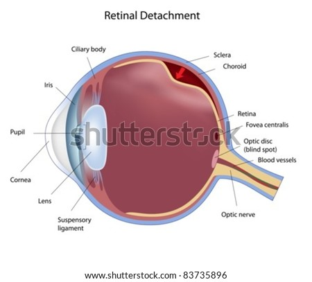 Eye condition: retinal detachment - stock vector