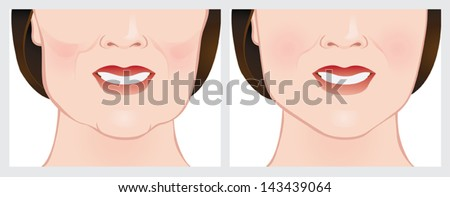 Face lift using dermal fillers. Before and after treatment. - stock vector