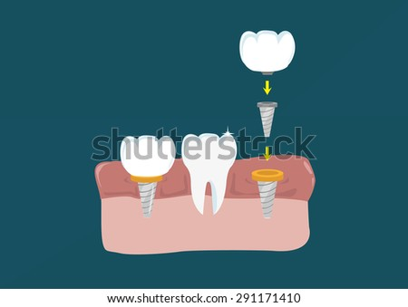 Flat Style Teeth surgical component implant to connect to the jaw. Editable Clip art.  - stock vector