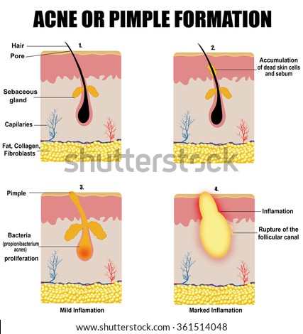 Formation of skin acne or pimple (for basic medical education, for clinics & Schools), vector illustration - stock vector
