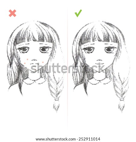 Freehand drawing medical icon Acne.Teenage girl with a pimple on her cheek. Acne vulgaris. Acne of a 14-year-old during puberty. Rubella. Rash on face. On white background. Eps 8 - stock vector