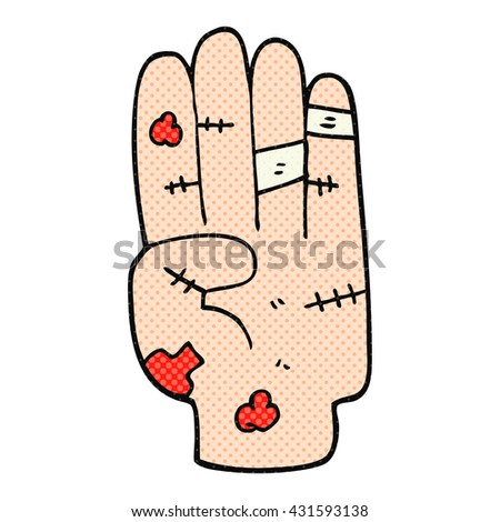 freehand drawn cartoon injured hand