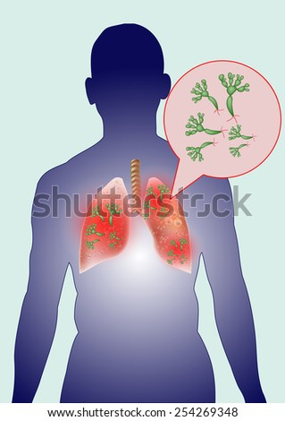 Fungi in human lungs. - stock vector