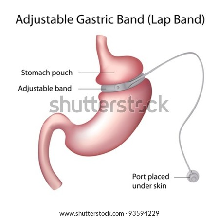Gastric Band or Lap band Weight Loss Surgery - stock vector