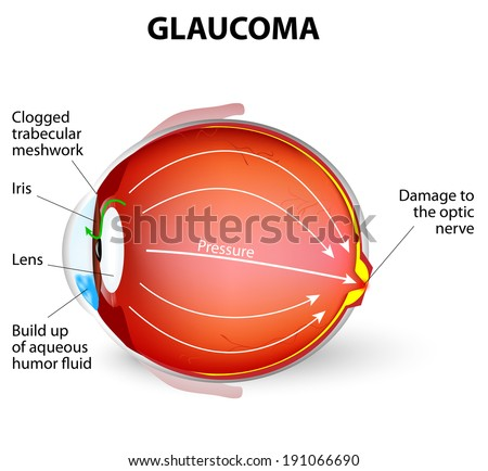 Glaucoma is an eye disease and a leading cause of blindness. The optic nerve is injured. The intra-ocular pressure is increased - stock vector