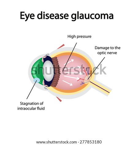 Glaucoma Eye Drops Clip Art